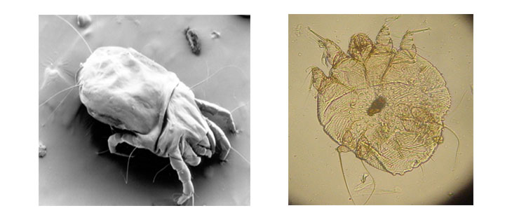 dust mite vs scabie itch mite